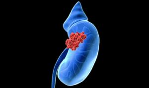 böbrek kanseri tedavisi