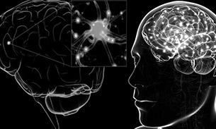 multipl skleroz nedenleri